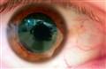 Adam-Eye